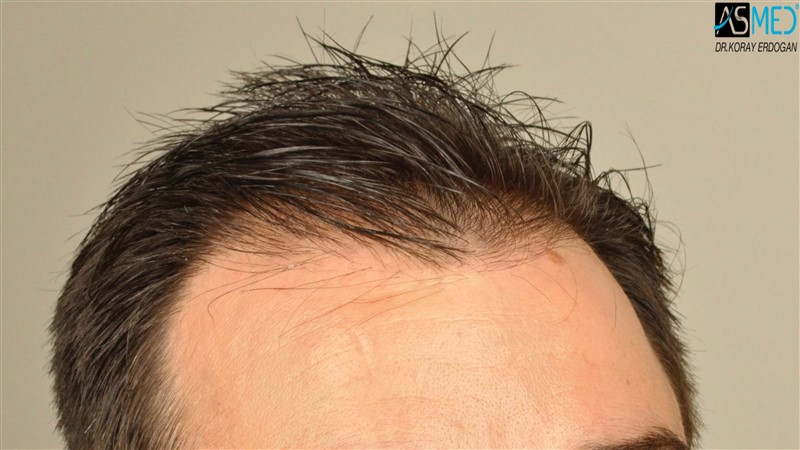 https://www.hairtransplantfue.org/asmed-hair-transplant-result/upload/Norwood3/3408-grafts-FUE/before/wet/V2__DSC9990aaa.jpg