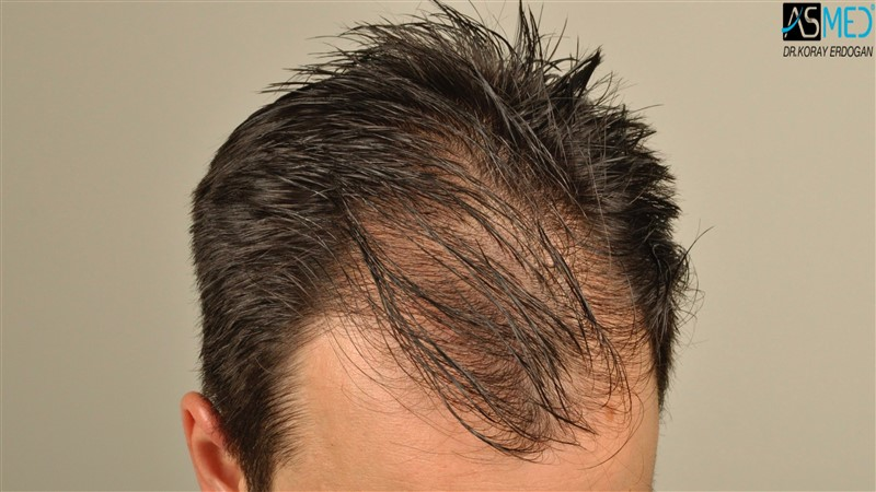 https://www.hairtransplantfue.org/asmed-hair-transplant-result/upload/Norwood3/3408-grafts-FUE/before/wet/V2__DSC9991aaa.jpg