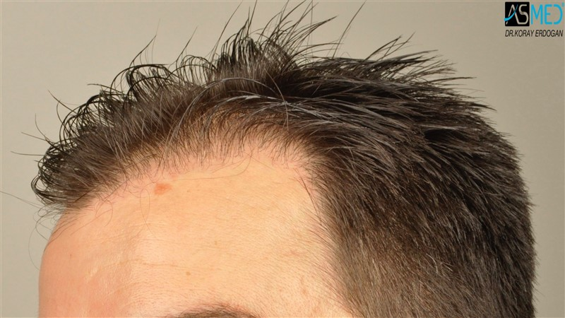 https://www.hairtransplantfue.org/asmed-hair-transplant-result/upload/Norwood3/3408-grafts-FUE/before/wet/V2__DSC9992aaa.jpg