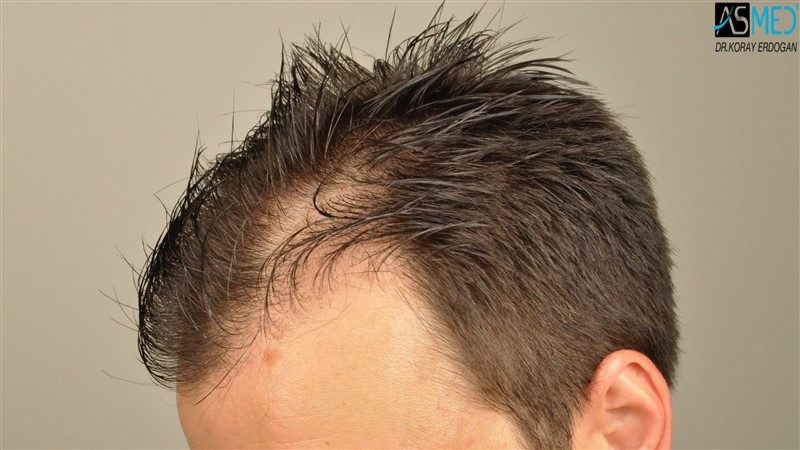https://www.hairtransplantfue.org/asmed-hair-transplant-result/upload/Norwood3/3408-grafts-FUE/before/wet/V2__DSC9993aaa.jpg