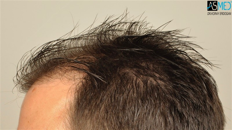 https://www.hairtransplantfue.org/asmed-hair-transplant-result/upload/Norwood3/3408-grafts-FUE/before/wet/V2__DSC9995aaa.jpg