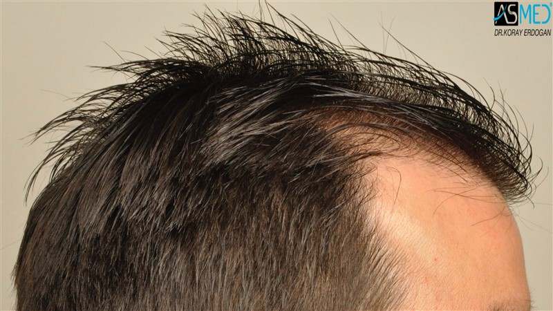 https://www.hairtransplantfue.org/asmed-hair-transplant-result/upload/Norwood3/3408-grafts-FUE/before/wet/V2__DSC9996aaa.jpg