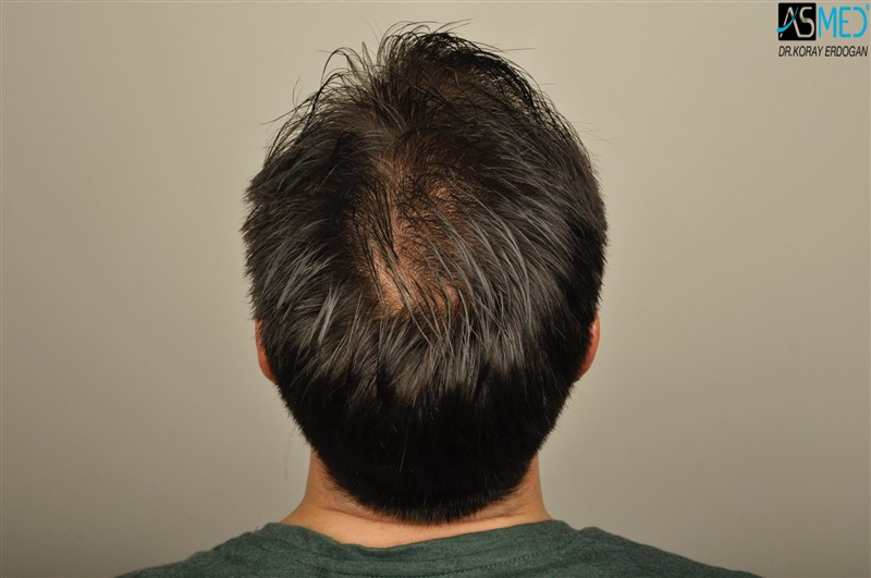 https://www.hairtransplantfue.org/asmed-hair-transplant-result/upload/Norwood3/3408-grafts-FUE/before/wet/V2__DSC9997aaa.jpg