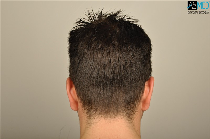 https://www.hairtransplantfue.org/asmed-hair-transplant-result/upload/Norwood3/3408-grafts-FUE/before/wet/V2__DSC9999aaa.jpg