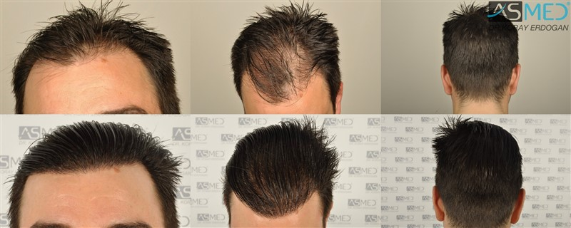 Dr Koray Erdogan - 3408 grafts FUE