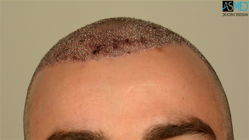 https://www.hairtransplantfue.org/asmed-hair-transplant-result/upload/Norwood3/3408-grafts-FUE/operation/V2_DSC_5310aaa.jpg