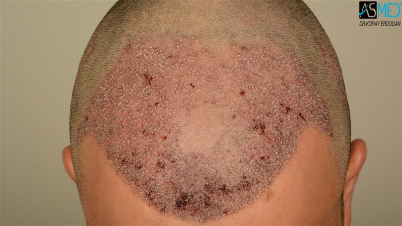 https://www.hairtransplantfue.org/asmed-hair-transplant-result/upload/Norwood3/3408-grafts-FUE/operation/V2_DSC_5312aaa.jpg