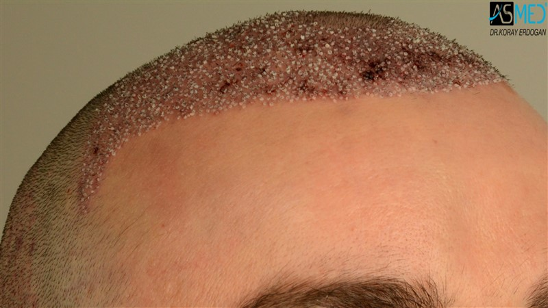 https://www.hairtransplantfue.org/asmed-hair-transplant-result/upload/Norwood3/3408-grafts-FUE/operation/V2_DSC_5313aaa.jpg