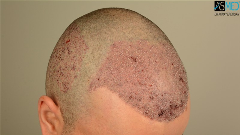 https://www.hairtransplantfue.org/asmed-hair-transplant-result/upload/Norwood3/3408-grafts-FUE/operation/V2_DSC_5314aaa.jpg