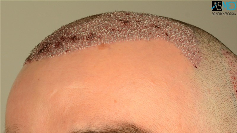 https://www.hairtransplantfue.org/asmed-hair-transplant-result/upload/Norwood3/3408-grafts-FUE/operation/V2_DSC_5315aaa.jpg