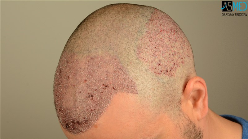 https://www.hairtransplantfue.org/asmed-hair-transplant-result/upload/Norwood3/3408-grafts-FUE/operation/V2_DSC_5316aaa.jpg
