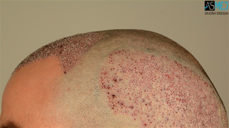 https://www.hairtransplantfue.org/asmed-hair-transplant-result/upload/Norwood3/3408-grafts-FUE/operation/V2_DSC_5318aaa.jpg