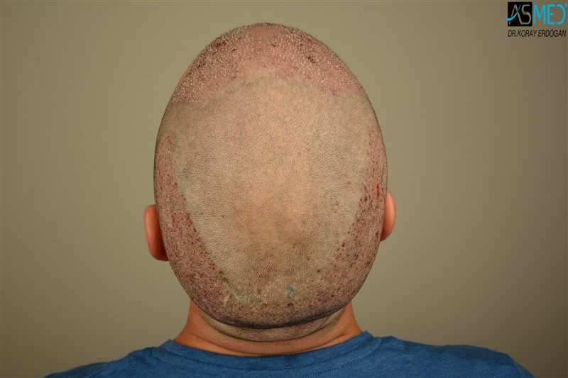 https://www.hairtransplantfue.org/asmed-hair-transplant-result/upload/Norwood3/3408-grafts-FUE/operation/V2_DSC_5320aaa.jpg