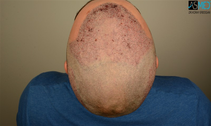https://www.hairtransplantfue.org/asmed-hair-transplant-result/upload/Norwood3/3408-grafts-FUE/operation/V2_DSC_5321aaa.jpg