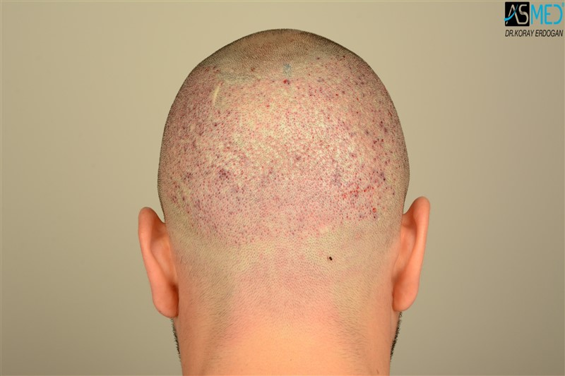 https://www.hairtransplantfue.org/asmed-hair-transplant-result/upload/Norwood3/3408-grafts-FUE/operation/V2_DSC_5322aaa.jpg