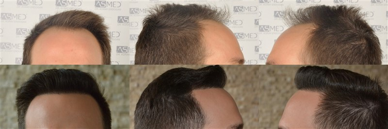 Dr Koray Erdogan - 3604 grafts FUE