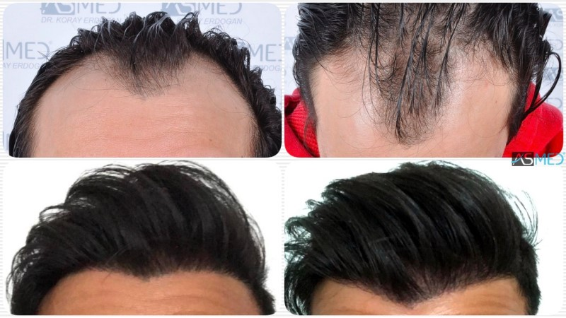 Dr. Koray Erdogan - 4143 Grafts FUE