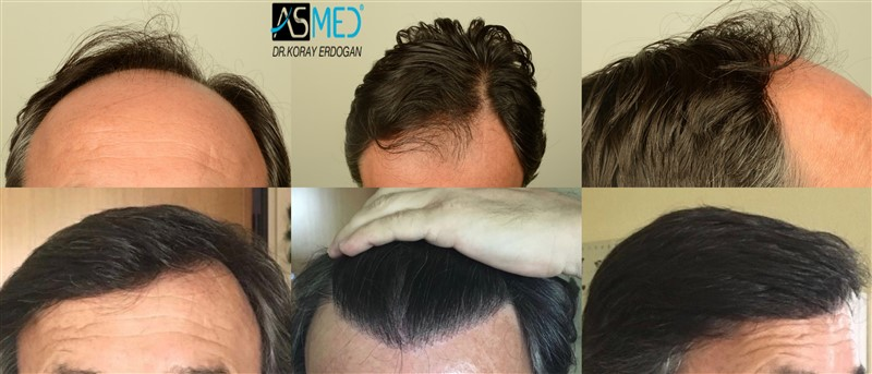 Dr Koray Erdogan - 4406 grafts FUE