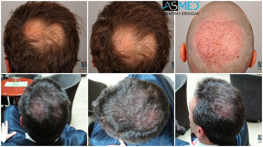 Dr Koray Erdogan - 1800 grafts FUE