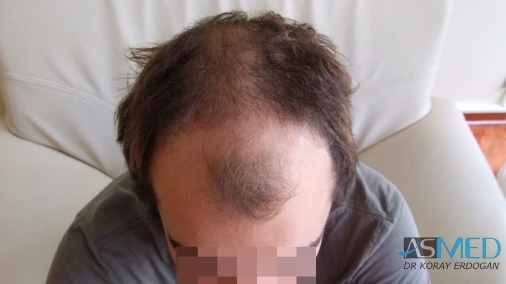 //www.hairtransplantfue.org/asmed-hair-transplant-result/upload/Norwood3v/2500-grafts-FUE/0e898320.jpg