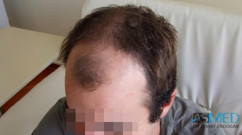//www.hairtransplantfue.org/asmed-hair-transplant-result/upload/Norwood3v/2500-grafts-FUE/155ca4d7.jpg