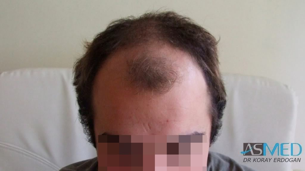 //www.hairtransplantfue.org/asmed-hair-transplant-result/upload/Norwood3v/2500-grafts-FUE/51e207b2.jpg
