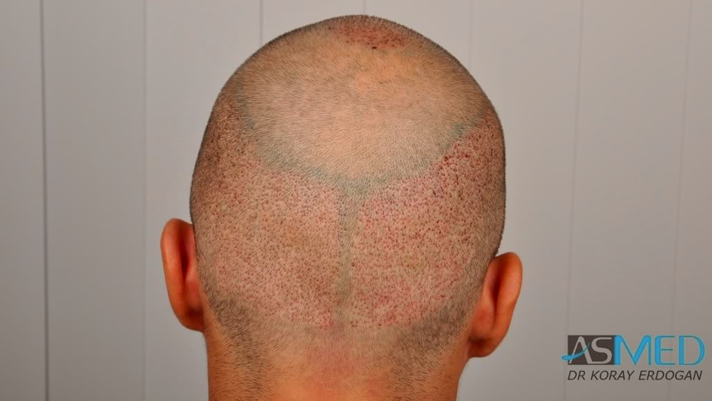 //www.hairtransplantfue.org/asmed-hair-transplant-result/upload/Norwood3v/2500-grafts-FUE/53a7d43a.jpg
