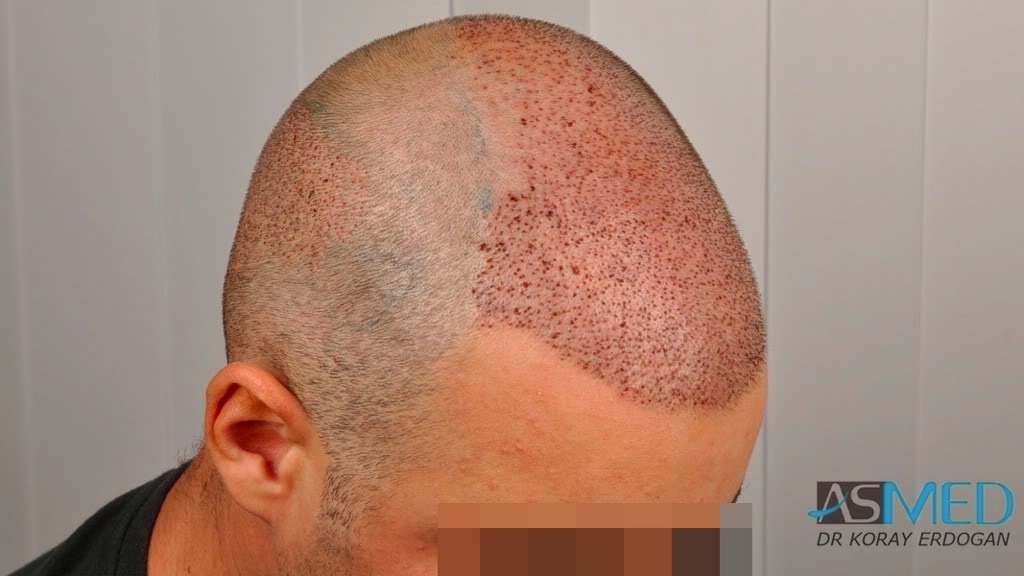 //www.hairtransplantfue.org/asmed-hair-transplant-result/upload/Norwood3v/2500-grafts-FUE/8854054b.jpg