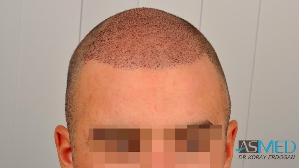 //www.hairtransplantfue.org/asmed-hair-transplant-result/upload/Norwood3v/2500-grafts-FUE/91c081c4.jpg