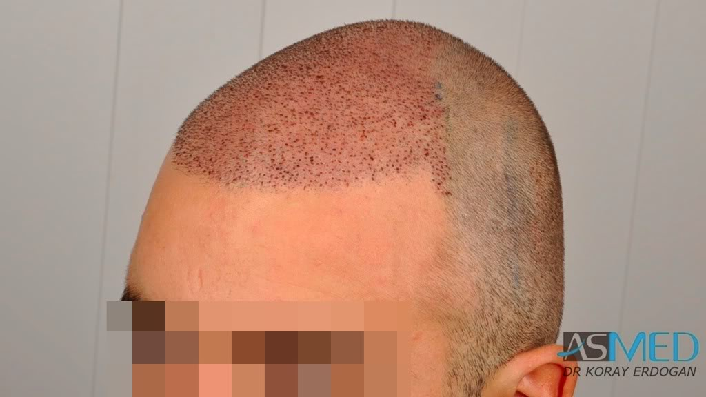 //www.hairtransplantfue.org/asmed-hair-transplant-result/upload/Norwood3v/2500-grafts-FUE/a0296822.jpg