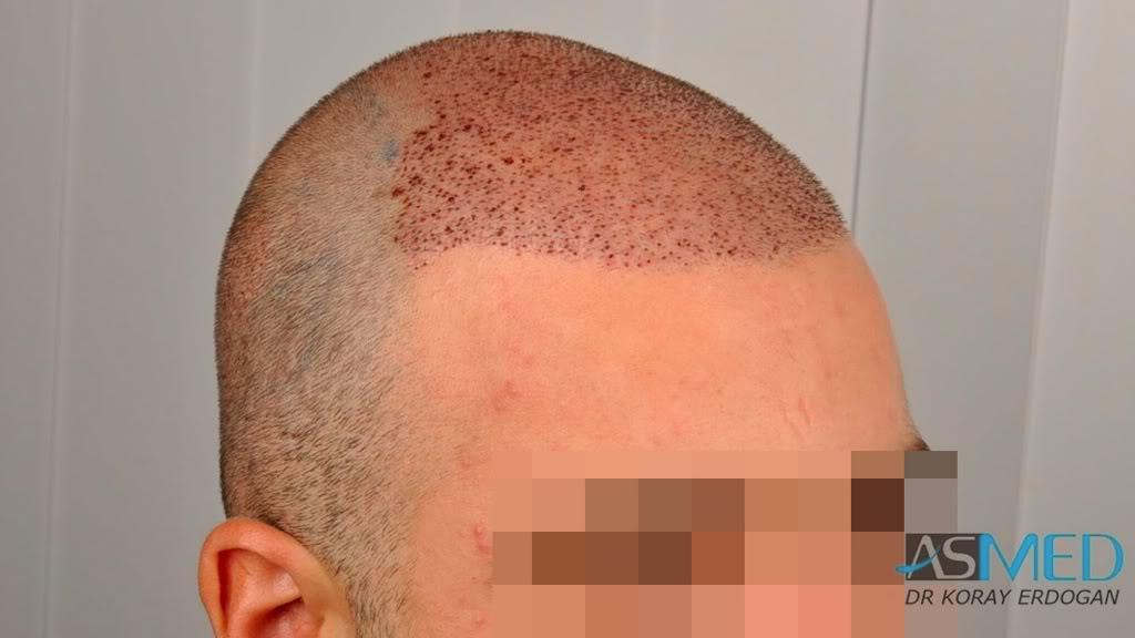 //www.hairtransplantfue.org/asmed-hair-transplant-result/upload/Norwood3v/2500-grafts-FUE/a55aabca.jpg