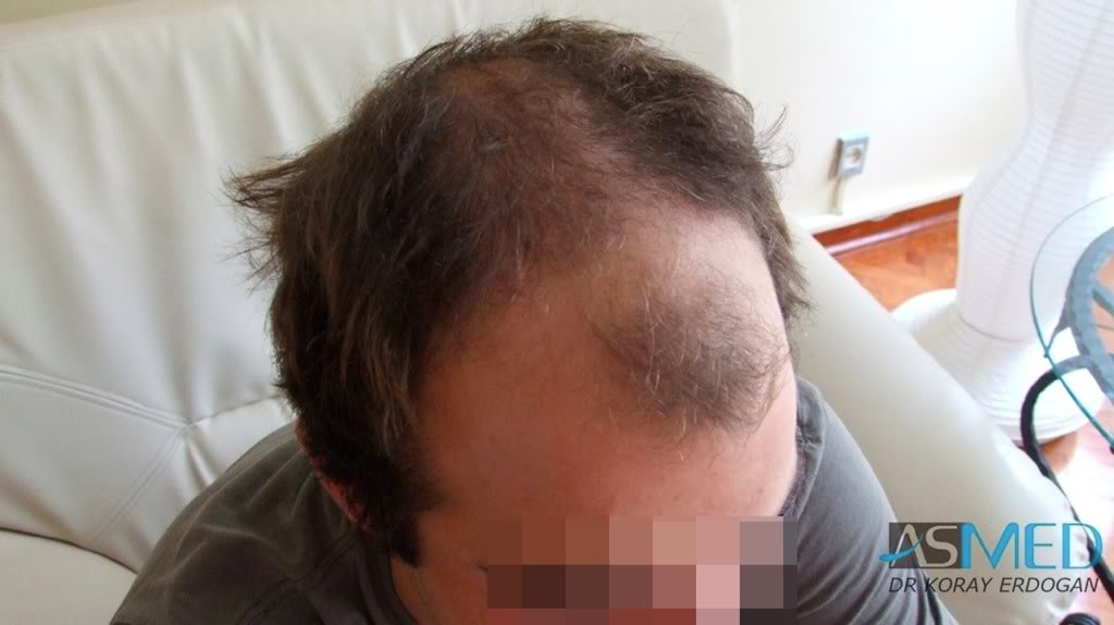 //www.hairtransplantfue.org/asmed-hair-transplant-result/upload/Norwood3v/2500-grafts-FUE/cd196c90.jpg
