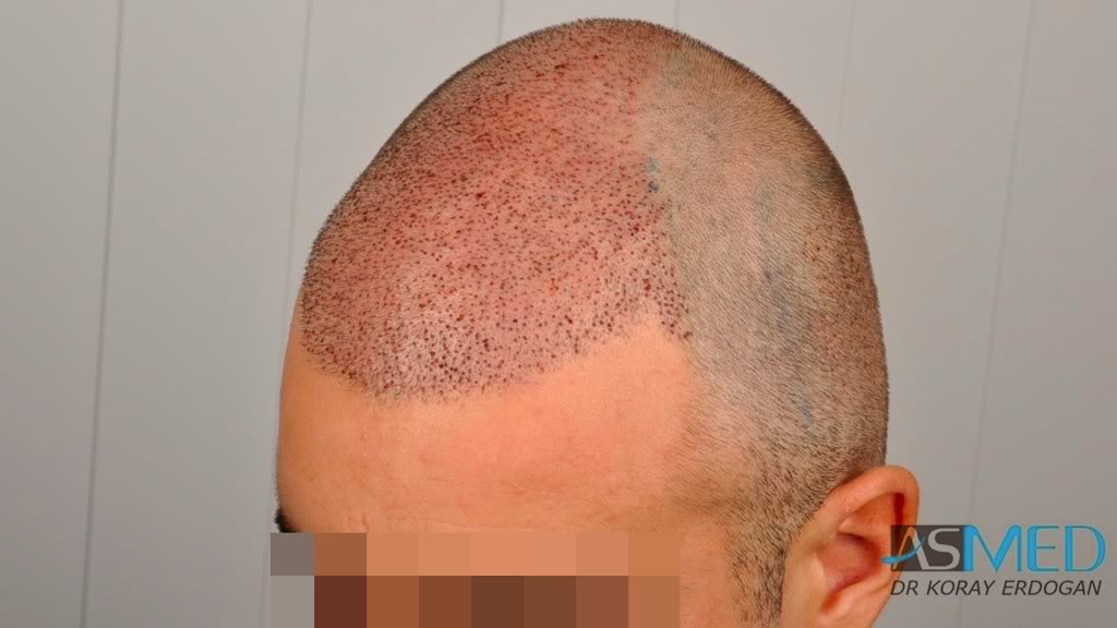 //www.hairtransplantfue.org/asmed-hair-transplant-result/upload/Norwood3v/2500-grafts-FUE/d1b656dd.jpg