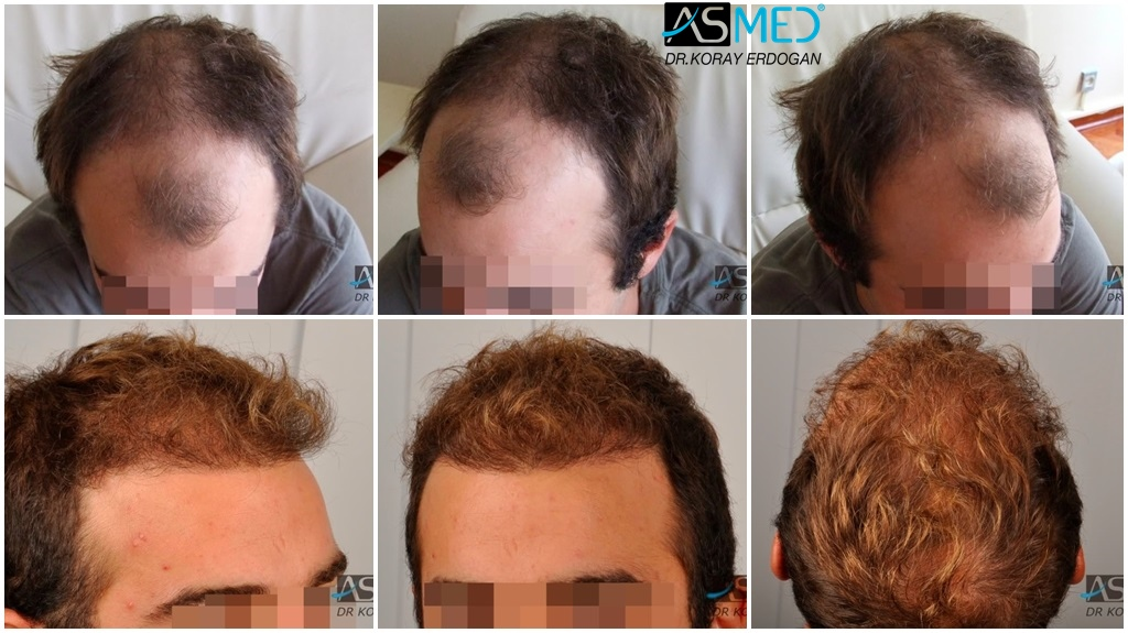 Dr Koray Erdogan - 2500 grafts FUE
