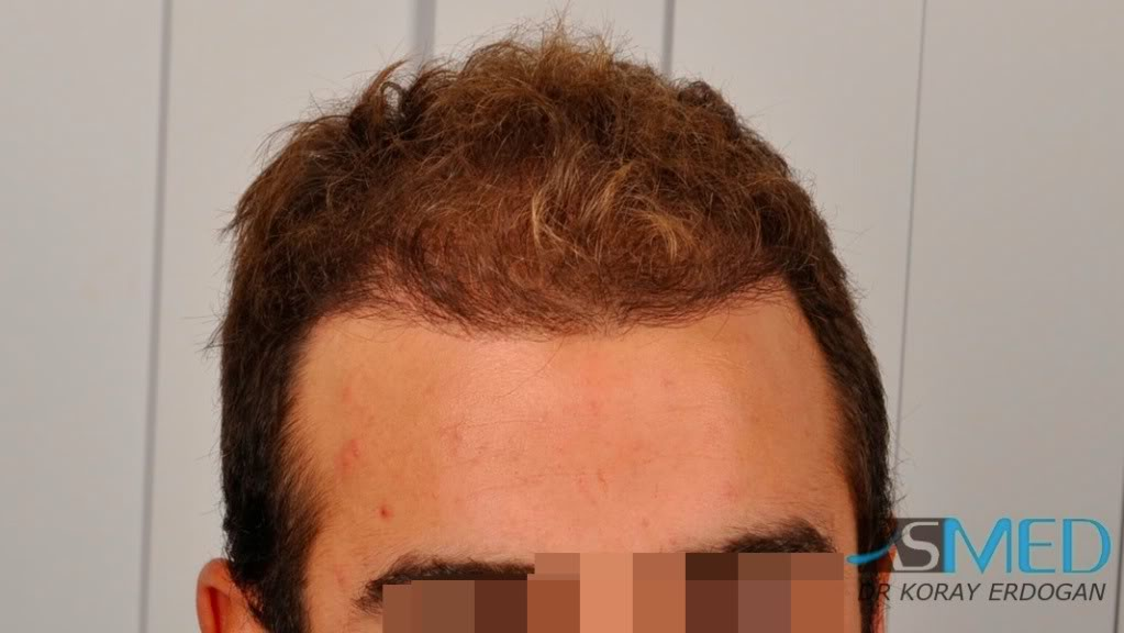 //www.hairtransplantfue.org/asmed-hair-transplant-result/upload/Norwood3v/2500-grafts-FUE/tn__DSC6460_logo.jpg