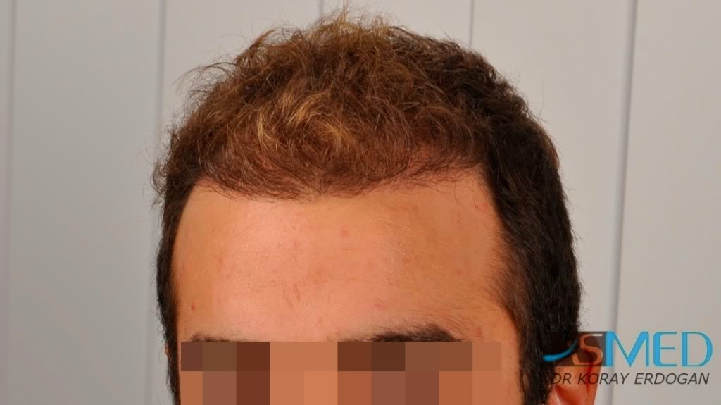 //www.hairtransplantfue.org/asmed-hair-transplant-result/upload/Norwood3v/2500-grafts-FUE/tn__DSC6461_logo.jpg