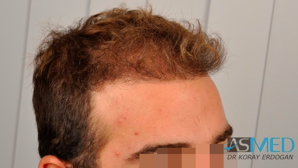 //www.hairtransplantfue.org/asmed-hair-transplant-result/upload/Norwood3v/2500-grafts-FUE/tn__DSC6467_logo.jpg