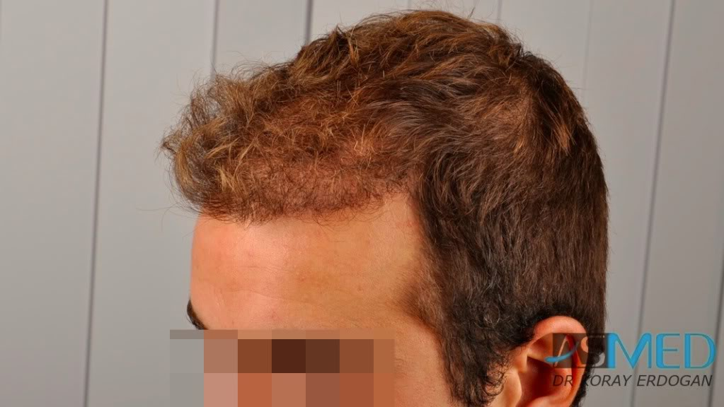 //www.hairtransplantfue.org/asmed-hair-transplant-result/upload/Norwood3v/2500-grafts-FUE/tn__DSC6470_logo.jpg