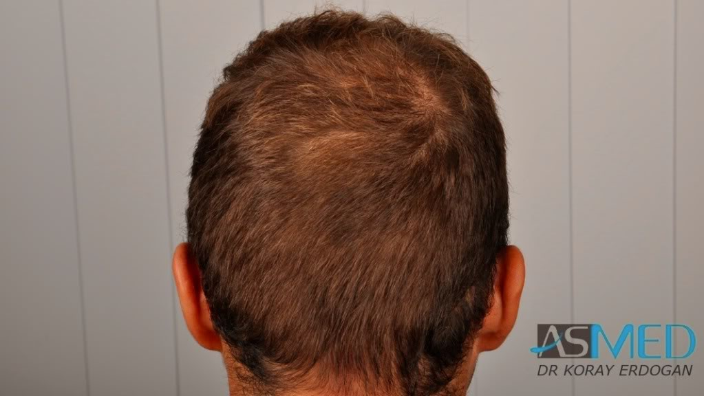 //www.hairtransplantfue.org/asmed-hair-transplant-result/upload/Norwood3v/2500-grafts-FUE/tn__DSC6472_logo.jpg