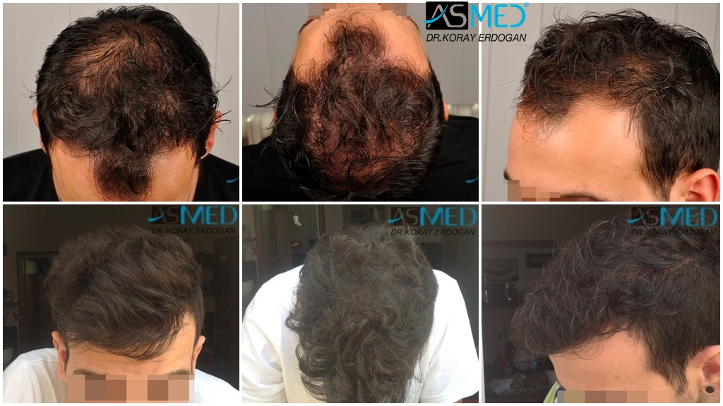 Dr Koray Erdogan - 2817 grafts FUE