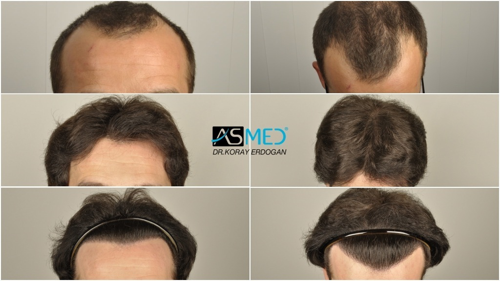 Dr Koray Erdogan - 3850 grafts FUE
