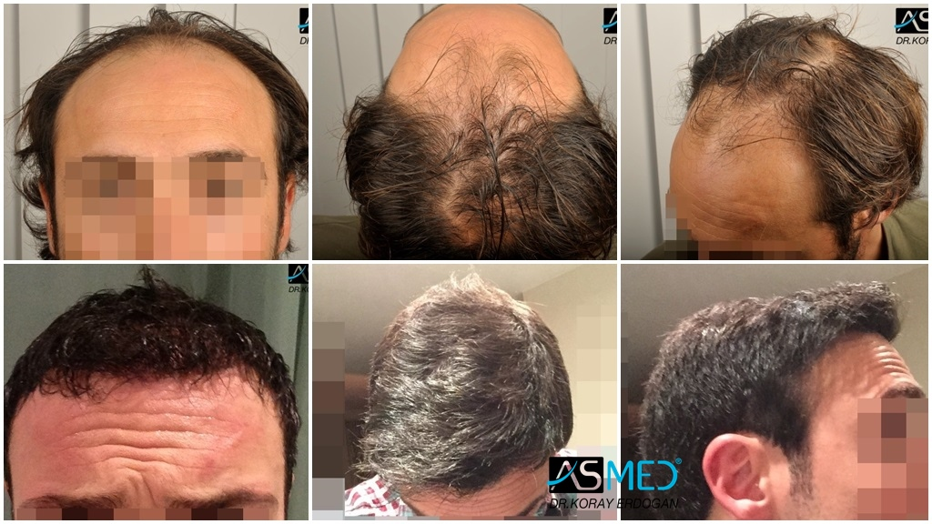 Dr Koray Erdogan - 4000 grafts FUE