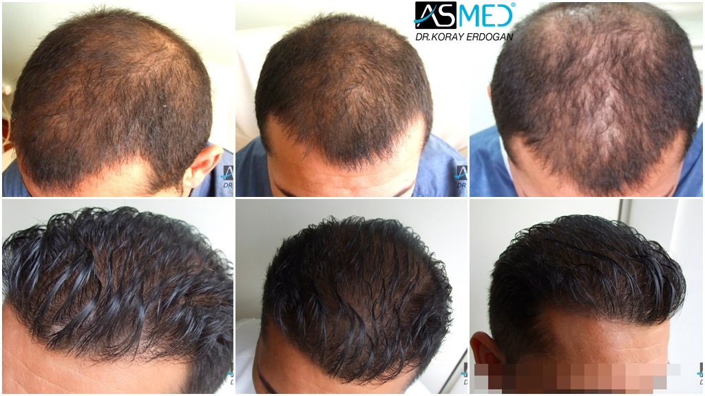 Dr Koray Erdogan - 2000 grafts FUE