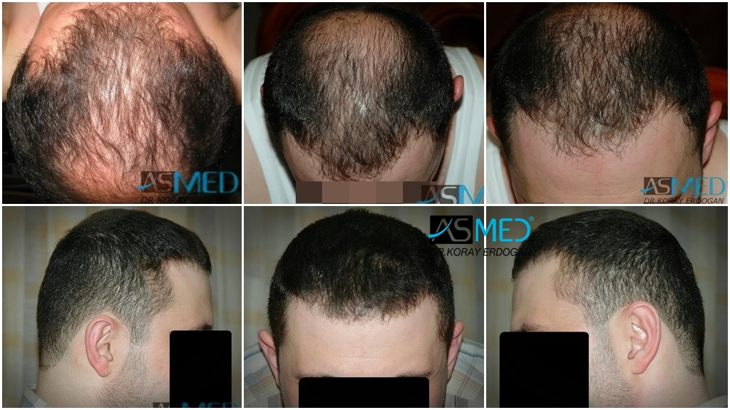 Dr Koray Erdogan - 2250 grafts FUE