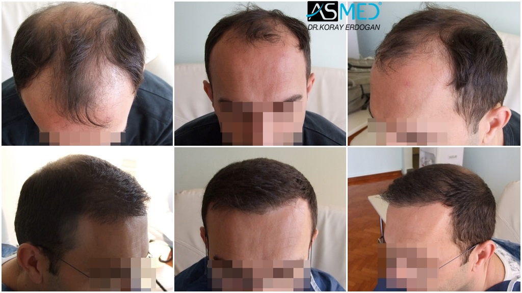 Hair transplant results before and after