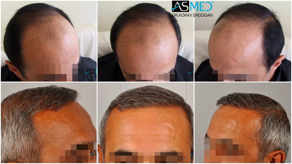 Dr Koray Erdogan - 2400 grafts FUE