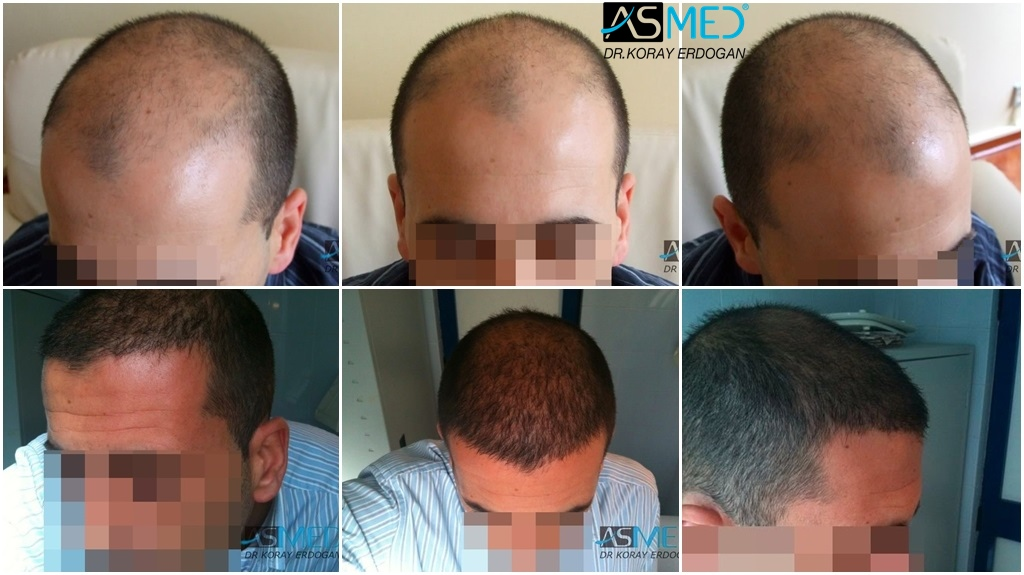 Hair transplant uk fue