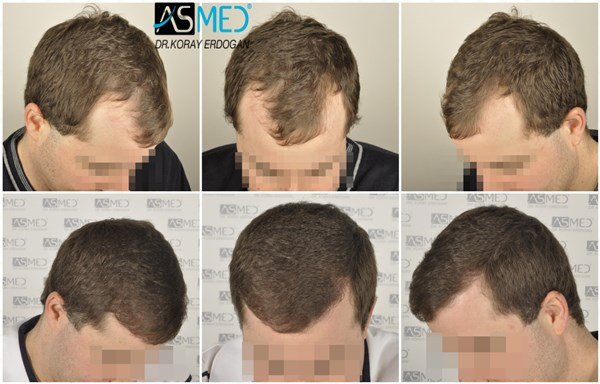 Dr Koray Erdogan - 3002 grafts FUE