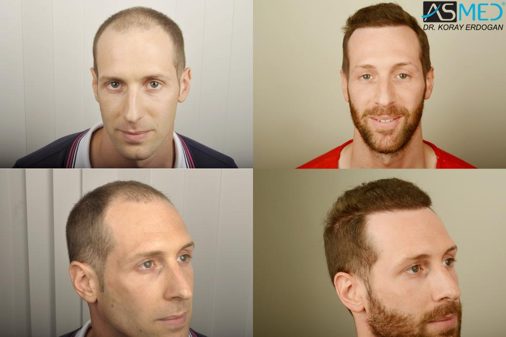 ASMED | Hair Transplant Results Gallery - All Norwoods