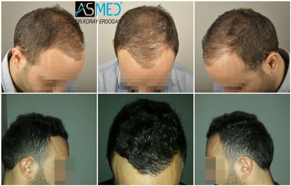 Dr Koray Erdogan - 3202 grafts FUE